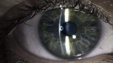 Image of Suki Chan, Slit Lamp Eye (Lucida), 2016